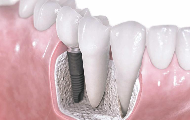 Studio dentistico Molfino implantologia