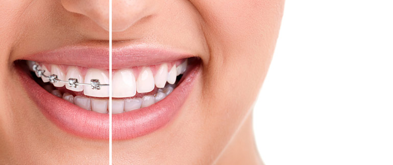 Studio dentistico Molfino. Tecnologia Invisalign.