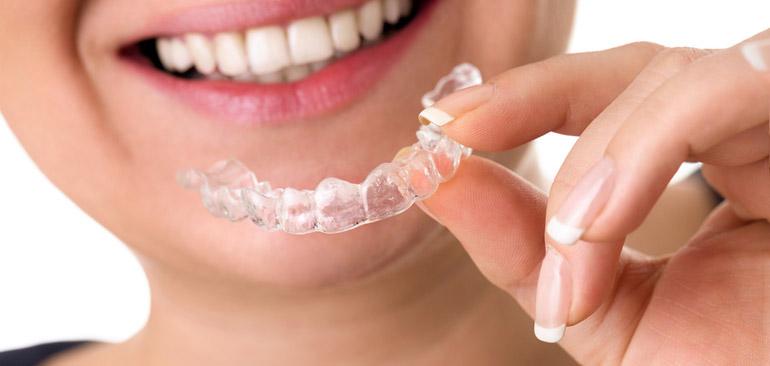Studio dentistico Molfino: bite per sportivi.