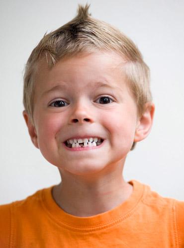Studio dentistico Molfino. Cura del bruxismo nei bambini.