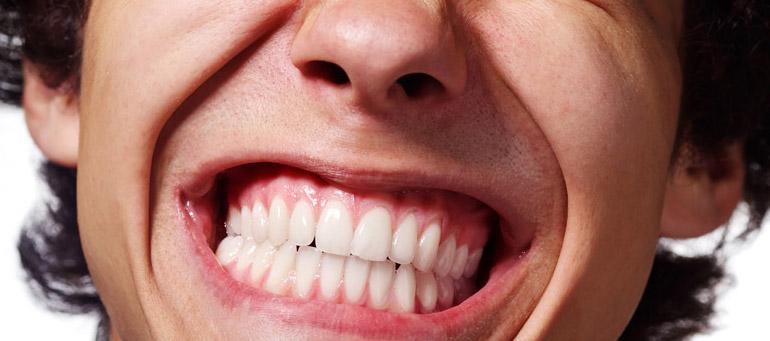 Studio dentistico Molfino. Terapie: bruxismo.