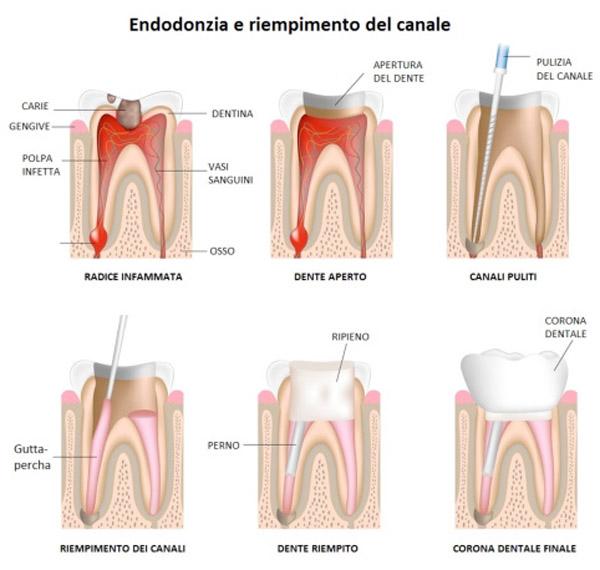 Studio dentistico Molfino terapie: edodonzia