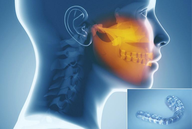 Studio dentistico Molfino. Terapie: gnatologia.