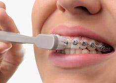 Ortodonzia Studio Molfino apparecchio fisso