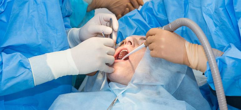 Studio dentistico Molfino. Terapie: trattamento chirurgico