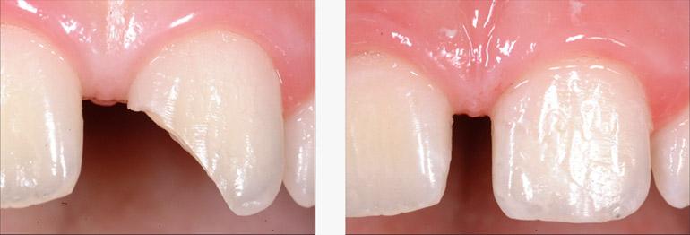 Studio dentistico Molfino. Traumi dentali nei bambini.